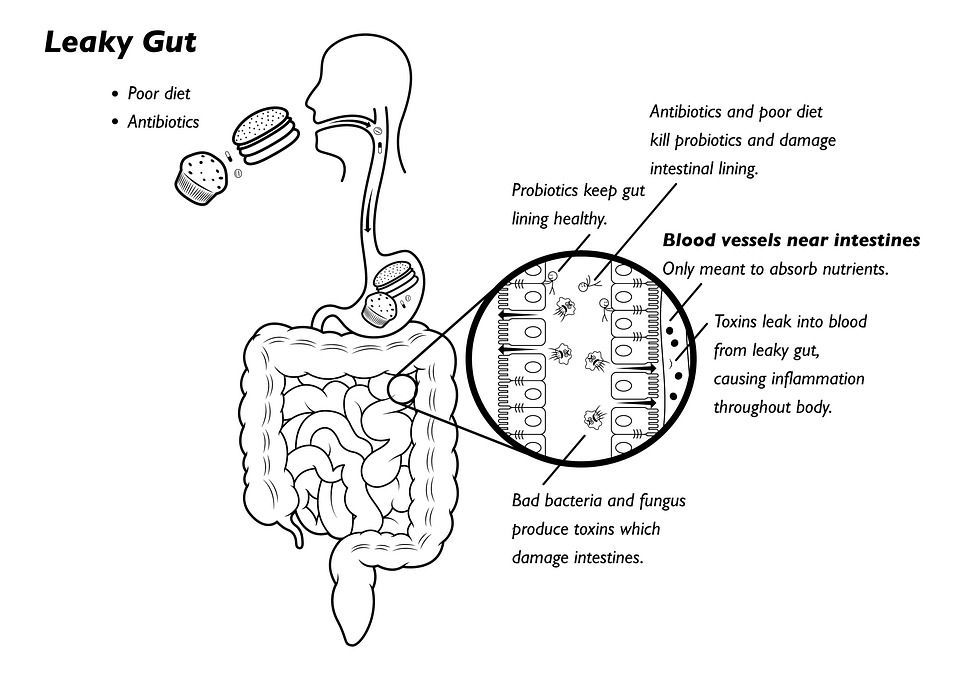 leaky gut syndrome  overview  symptoms  u0026 treatment options