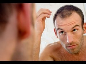 balding man in mirror